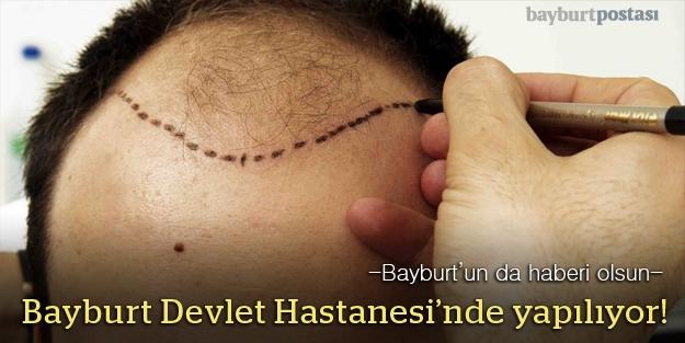 Bayburt Devlet Hastanesi kozmetikte çığır açtı