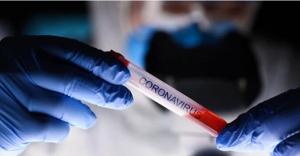 """Koronavirüsle Mücadelede Yeni Dönem: """"Tedbirlere Riayet Edilmesi Elzem"""""""